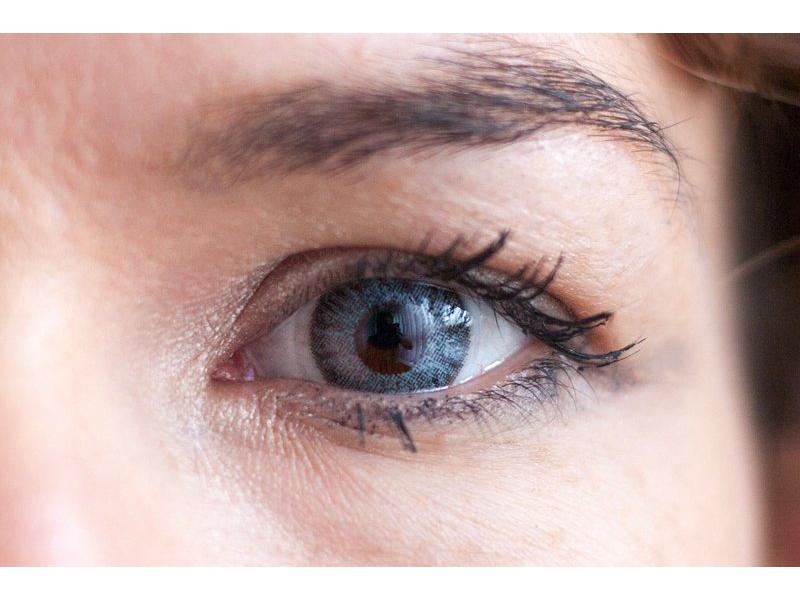 """""""Grey"""" bei einer braunen Augenfarbe"""